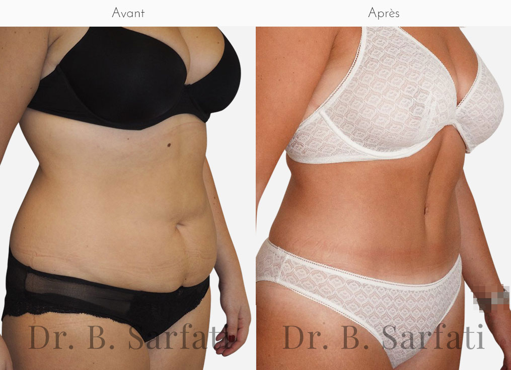 Abdominoplastie-photo-avant-apres-dr-sarfati-paris-patient-a