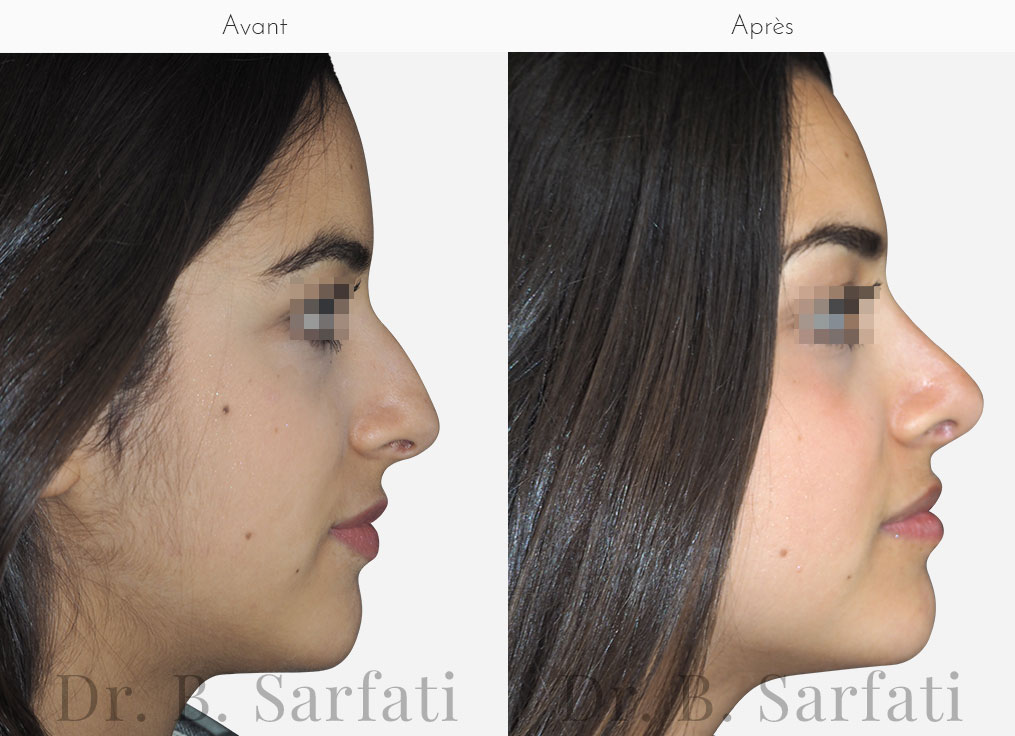 rhinoplastie-photo-avant-apres-dr-sarfati-paris-patient-1-a