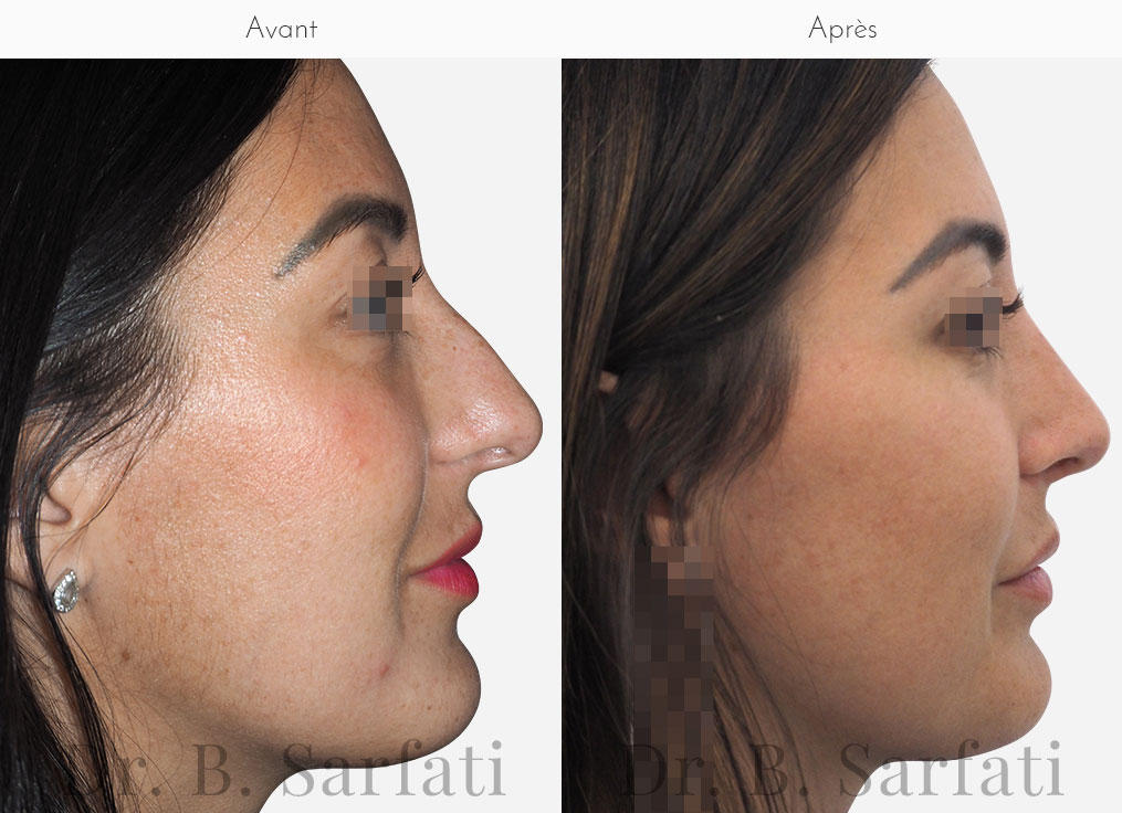 rhinoplastie-photo-avant-apres-dr-sarfati-paris-patient-2-a
