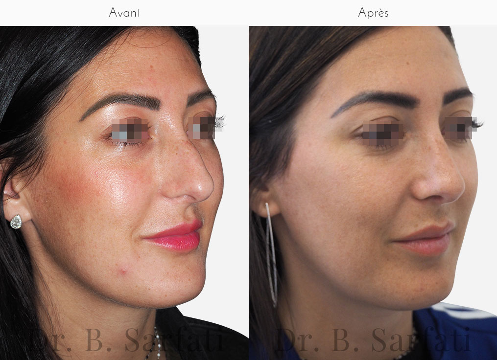rhinoplastie-photo-avant-apres-dr-sarfati-paris-patient-3-a