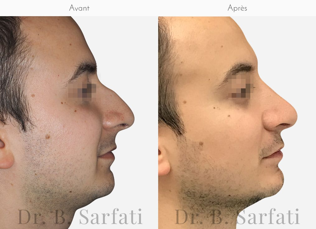 rhinoplastie-photo-avant-apres-dr-sarfati-paris-patient-4-a