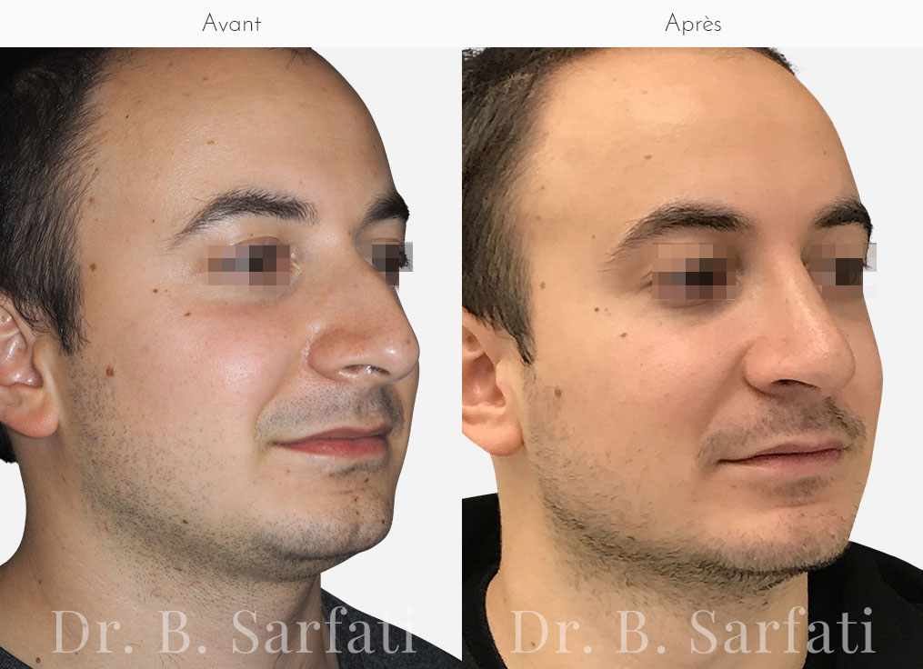 rhinoplastie-photo-avant-apres-dr-sarfati-paris-patient-4-b