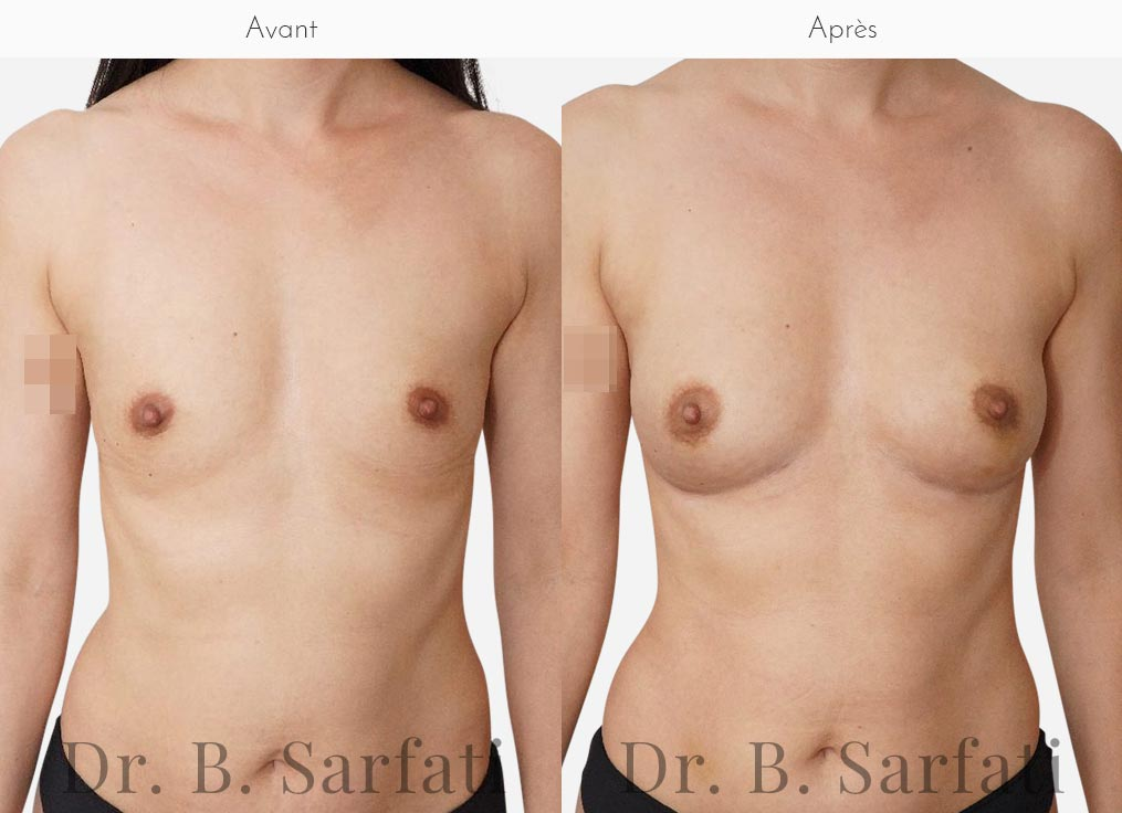 injections-lipofilling-seins-face