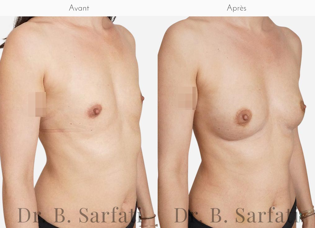 injections-lipofilling-seins-oblique